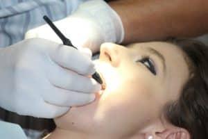 Bridge dentaire : quels sont ses avantages ?